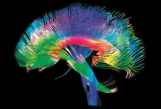 brainome