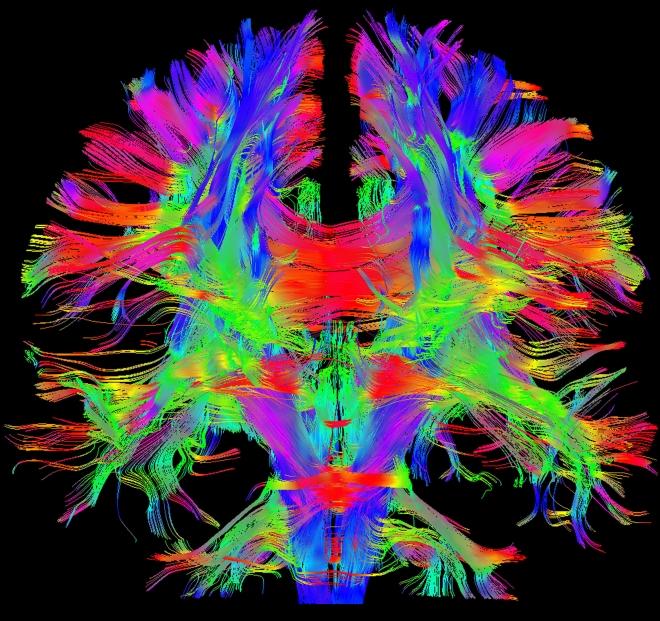 Neuer 3-Tesla-Scanner Magnetom Prisma von Siemens erschließt neue Anwendungsfelder für die Magnetresonanztomographie / New 3-tesla MRI scanner Magnetom Prisma from Siemens is designed to explore new frontiers in MRI application