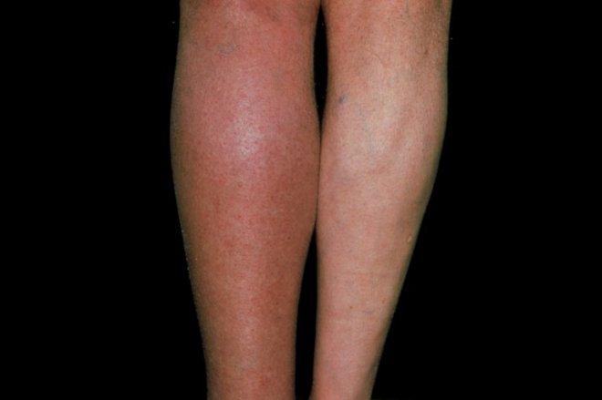 S_0917_deep-vein-thrombosis_M17501.2e16d0ba.fill-767x511