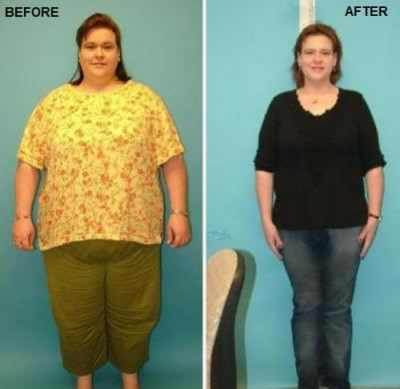 How-to-Decide-on-Gastric-Bypass-Surgery-to-Lose-Weight-400x389