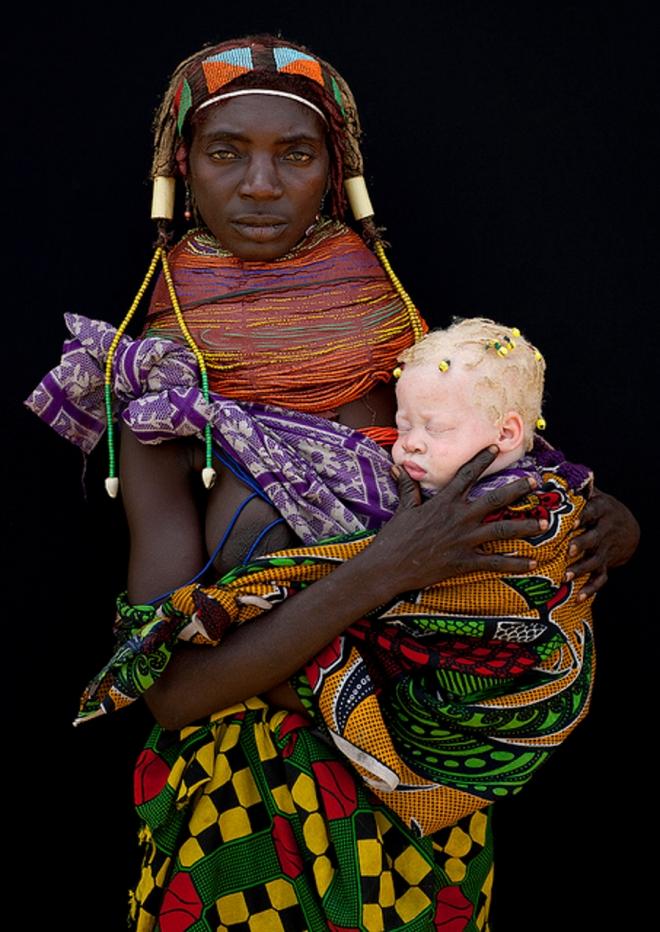 Motherandalbinochild2.jpg