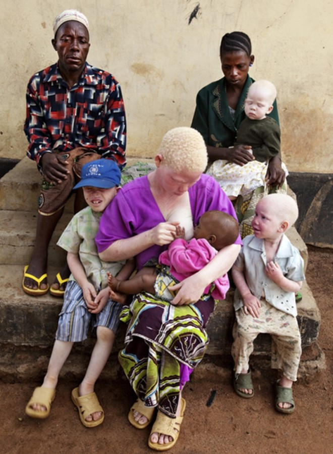 One_albino_parent_8.JPG